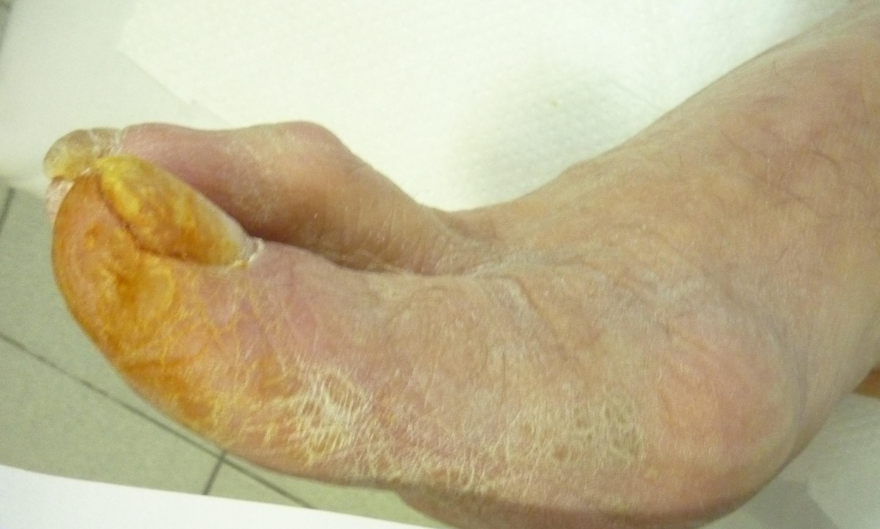 Атеросклероз ног и сахарный диабет